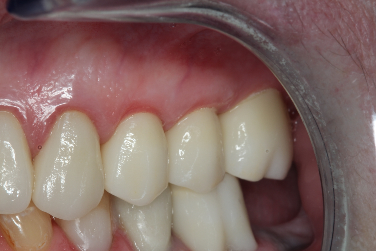 You can't even tell which teeth are implants | Dr. Bilski