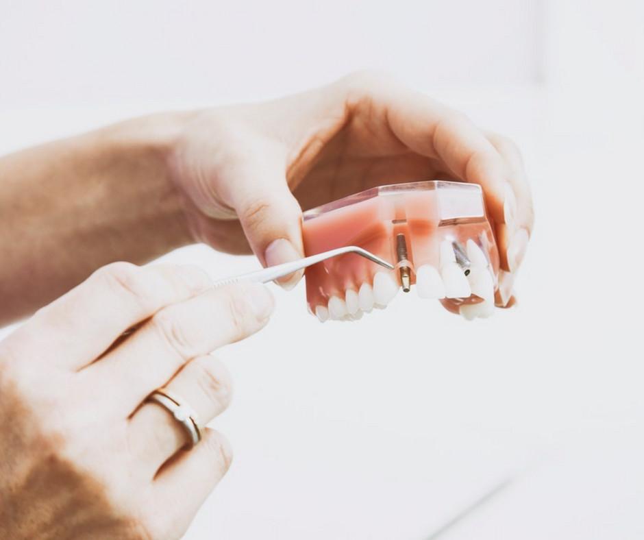 Dental Implants v. Dentures | Dr. Bilski | independence, Ohio