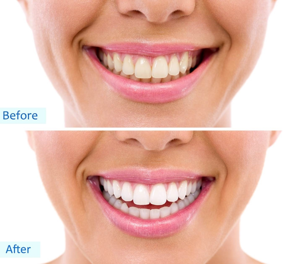 Is Teeth Whitening Safe? Image