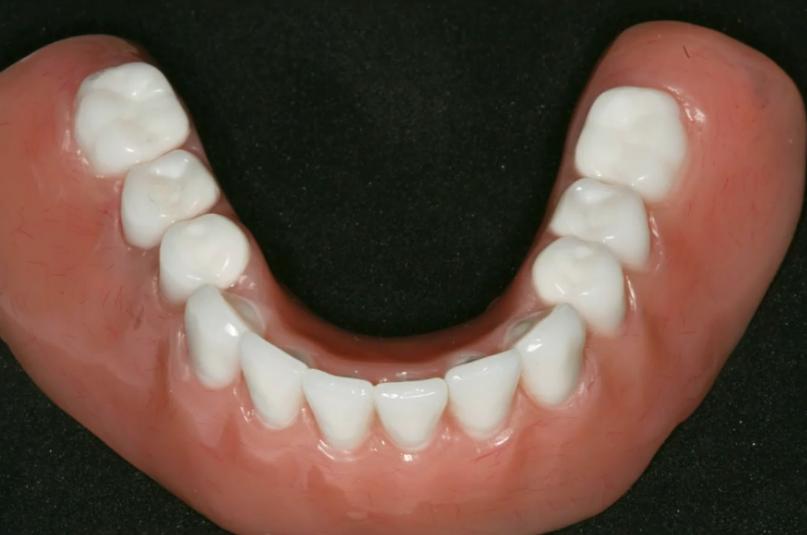 Mini Dental Implants in Independence, Ohio Image