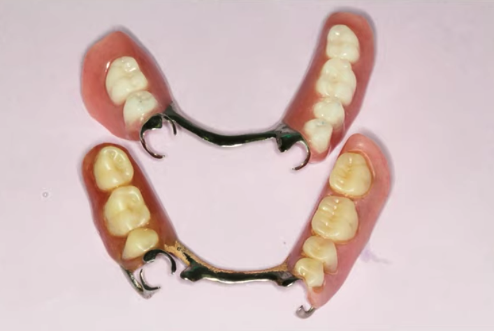 Missing Teeth Solutions for Less in Independence, Ohio Image