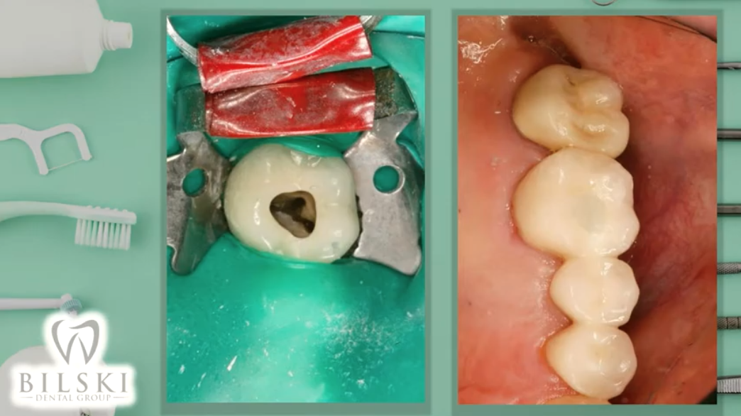 Tooth-Colored Fillings in Cleveland, Ohio Image