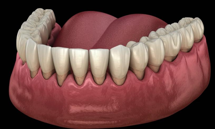 How to Reverse Gum Recession