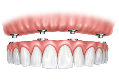 dentures connected to gums using 4 connectors
