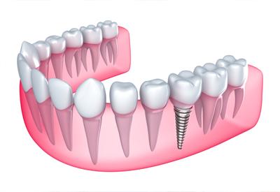 Set of teeth with a dental impant