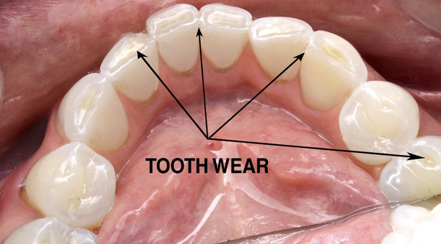 excessive tooth ware from occlusal disease | Coshocton Dentistry