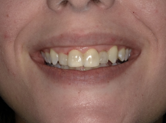 Esthetic Bonding- A Quick and Affordable Way to Change Your Smile
