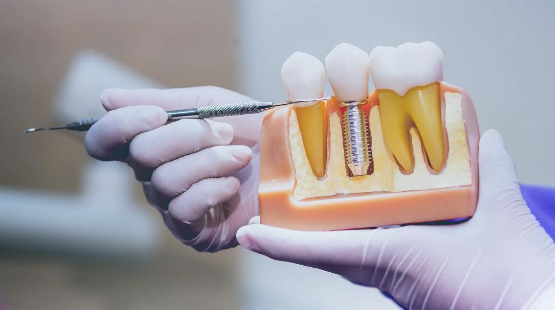 Mini Implants: The Affordable Dental Implants