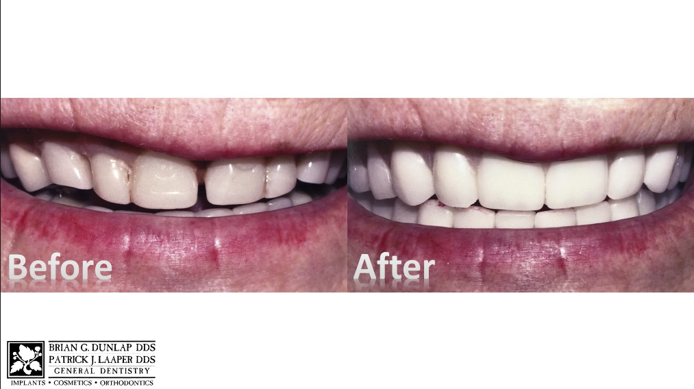 Redesign Your Smile