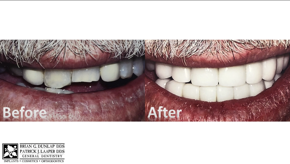 Anterior Crowns Can Change Your Smile