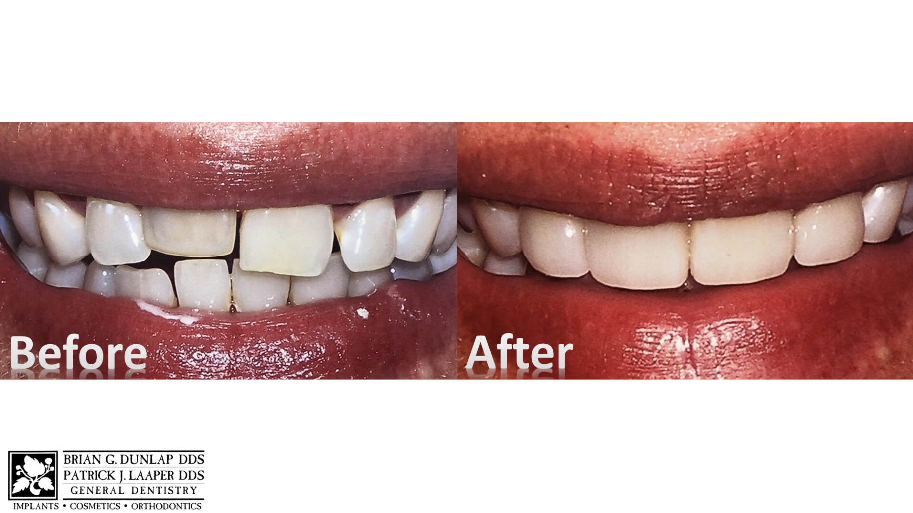 Straighten Your Front Teeth in One Day!