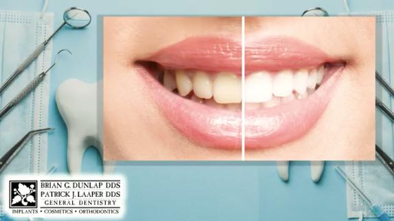 Teeth Bleaching at the Dentist