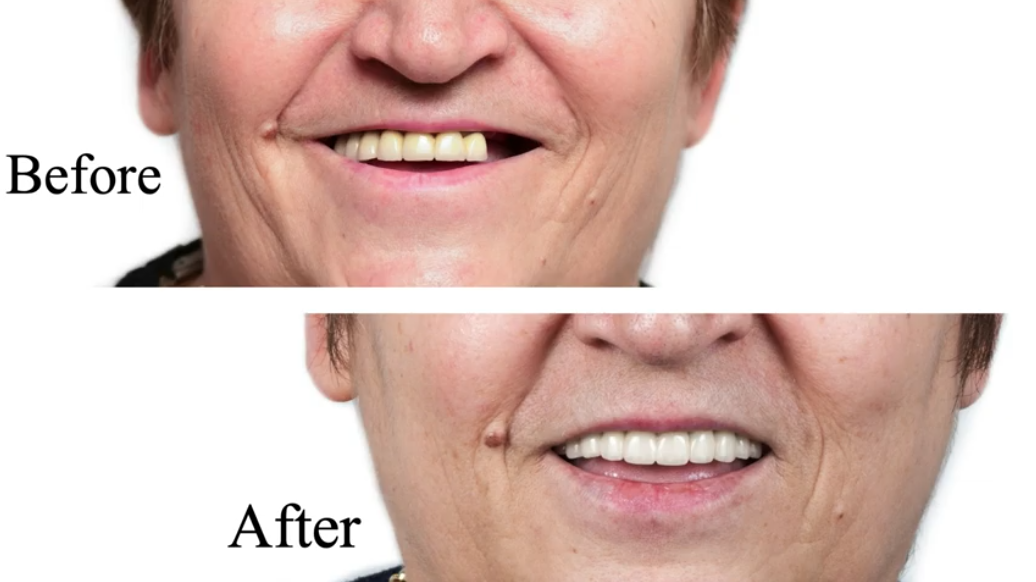 Dental Implants at Coshocton Dentistry