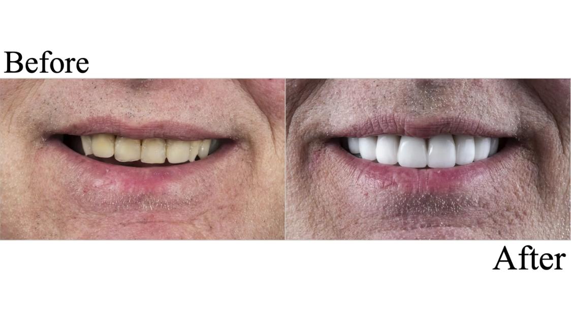 Veneers at Coshocton Dentistry