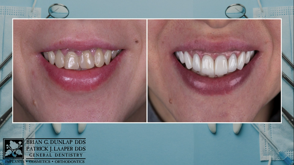 Boost Your Confidence with Cosmetic Dentistry