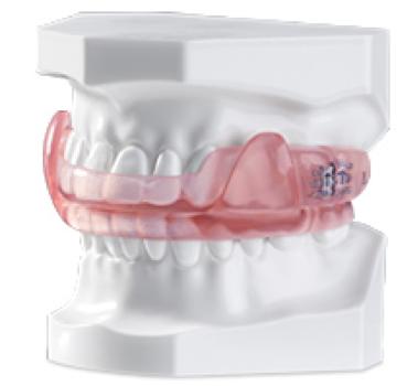 Can My Dentist Help Me with Sleep Apnea?