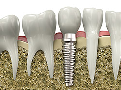 How Dental Implants Can Change Your Life