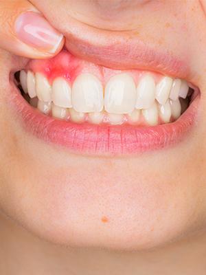 Gum Disease | Coshocton Dentistry