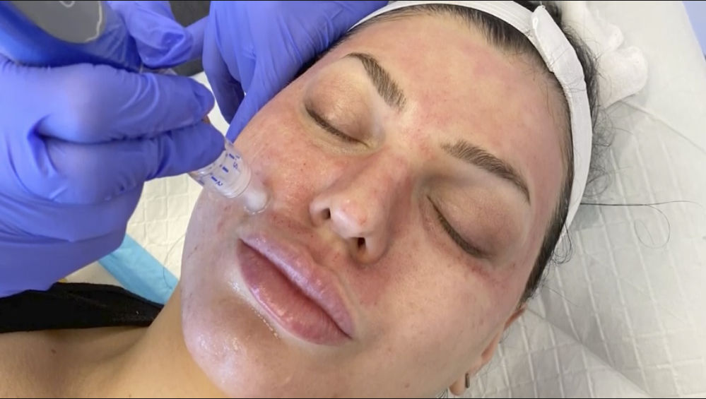 How to Treat Aging Skin